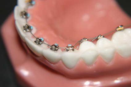 Estética dental y salud: conoce todo sobre la ortodoncia | Línea y ...